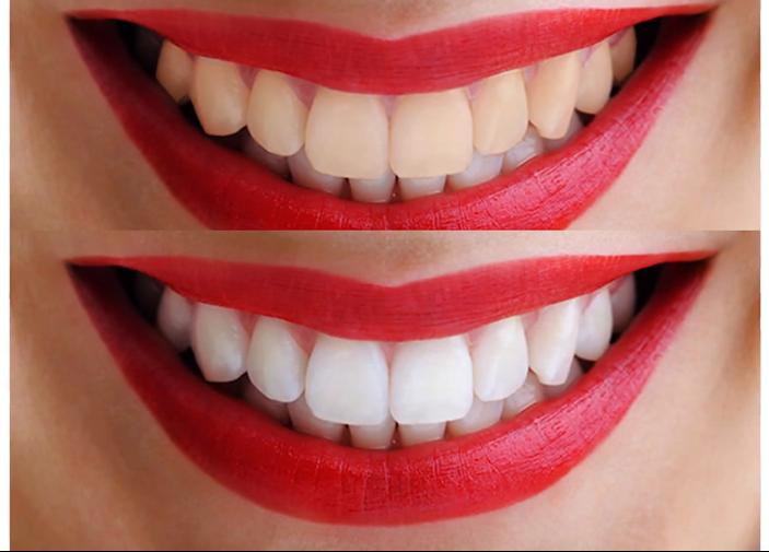 Использование винировых накладок позволяет полностью воссоздать эмаль на зубах и повторить все контуры зубов